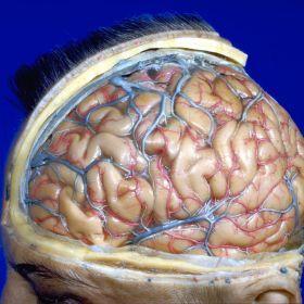 Anatomy Stereo by David Bassett 1952